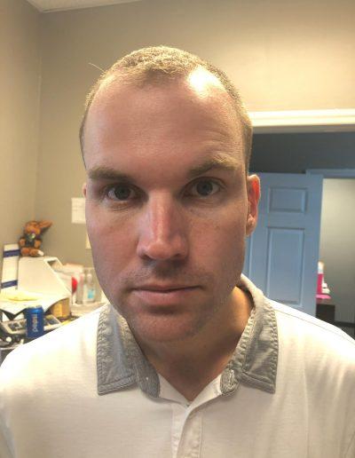 Man After Botox